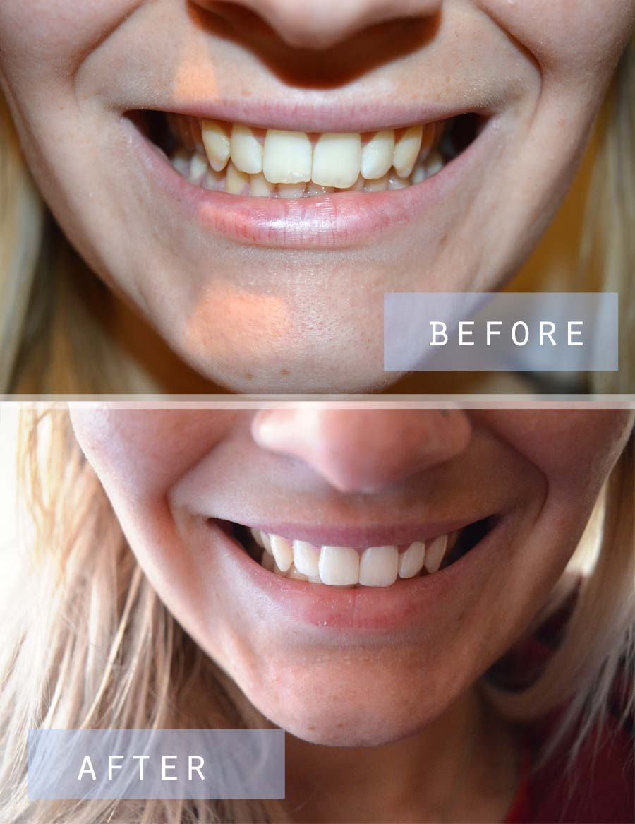 smile brilliant teeth whitening results